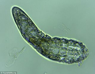 demodex_folliculorum_s