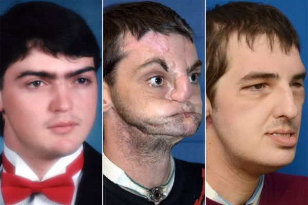 brother-face-transplant-surgery